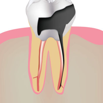 Tooth decay and dental implants
