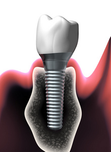 Dry mouth and dental implants